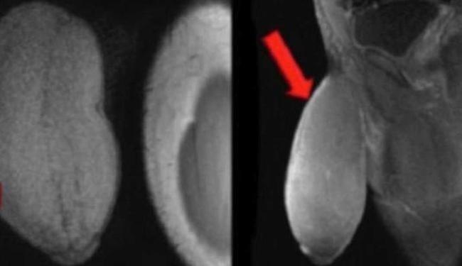 13.fev.2015 - O pênis do jovem tinha um formato incomum, como de uma bola de futebol americano, segundo o médico Rafael Carrion
