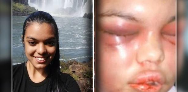 Mulher ficou com o rosto desfigurado após repetidas agressões do marido