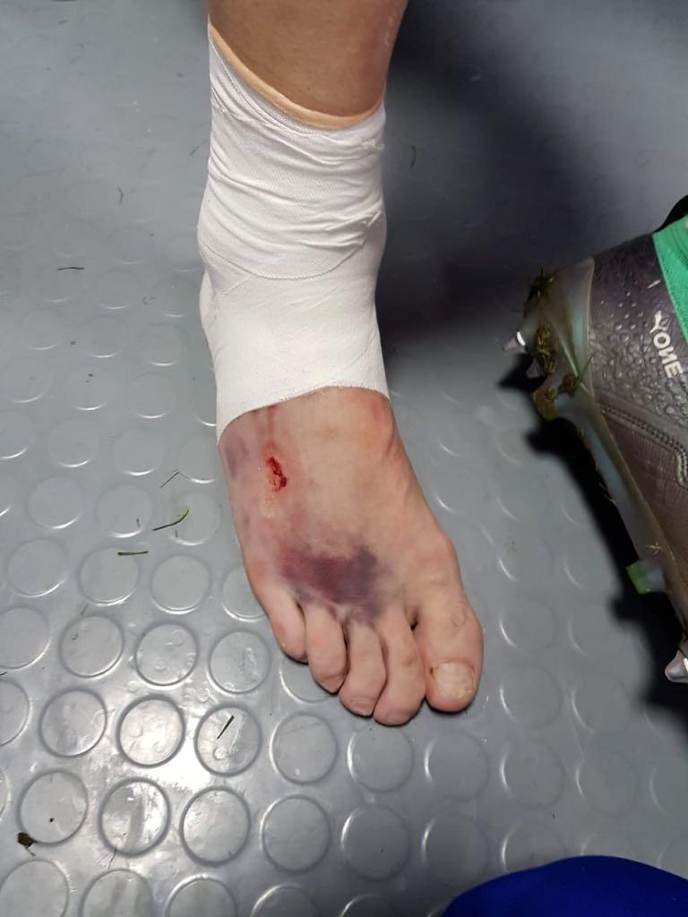 Pé do zagueiro da Rússia Ilya Kutepov após jogo contra a Croácia