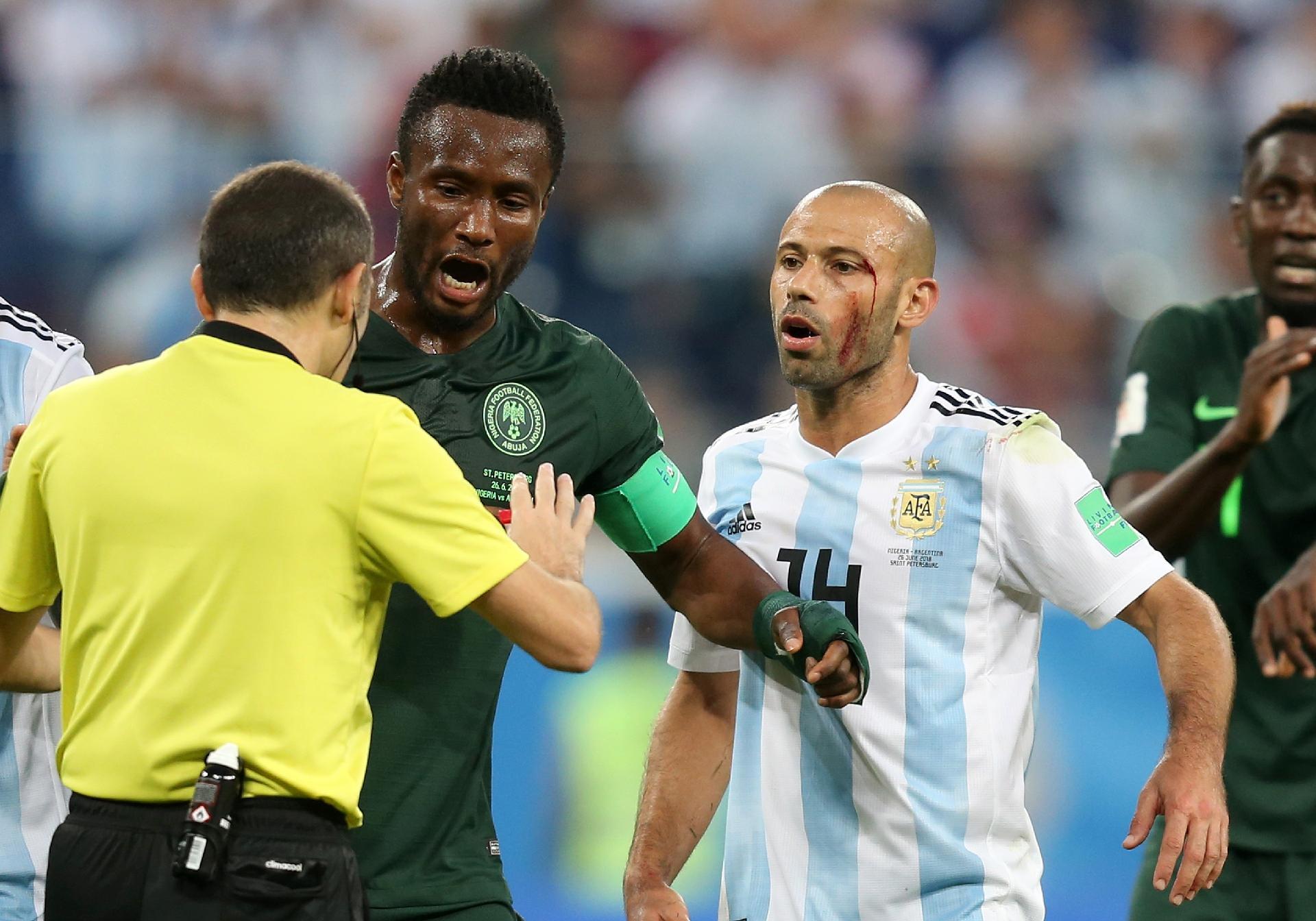Nigéria na Copa 2018  Lição da Copa  zagueiro diz que Nigéria precisa  aprender a jogar sujo - UOL Copa do Mundo 2018 114d825872e9c