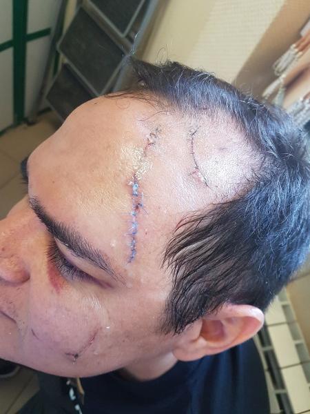 Alexandre Nazareno, torcedor agredido por assessor de Coronel Nunes, presidente da CBF - Reprodução