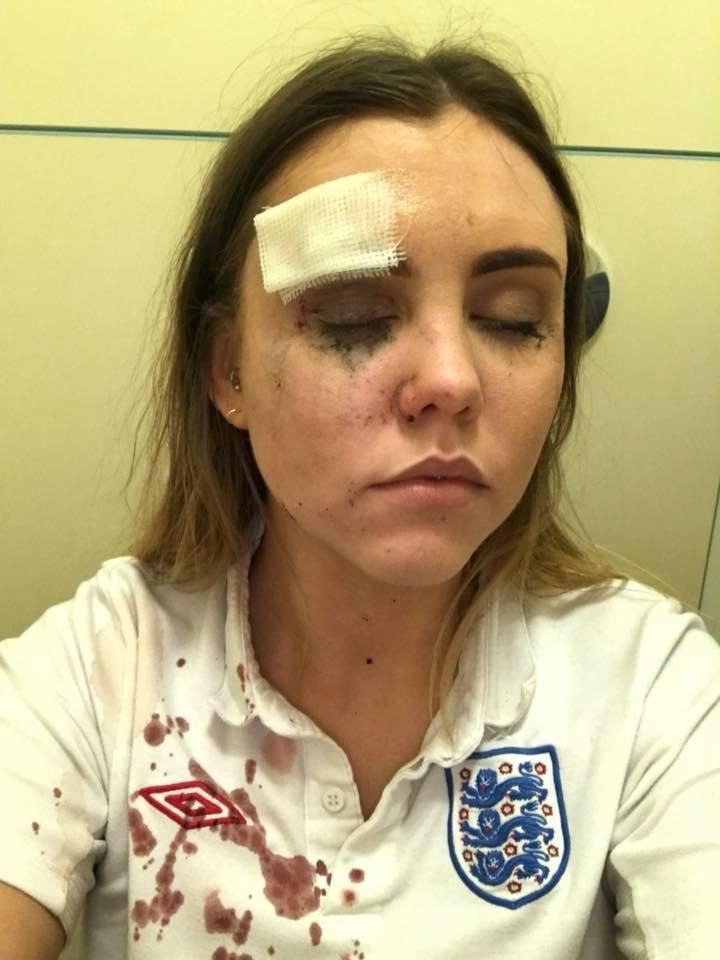 Torcedora inglesa ferida por copo durante comemoração de gol contra a Colômbia