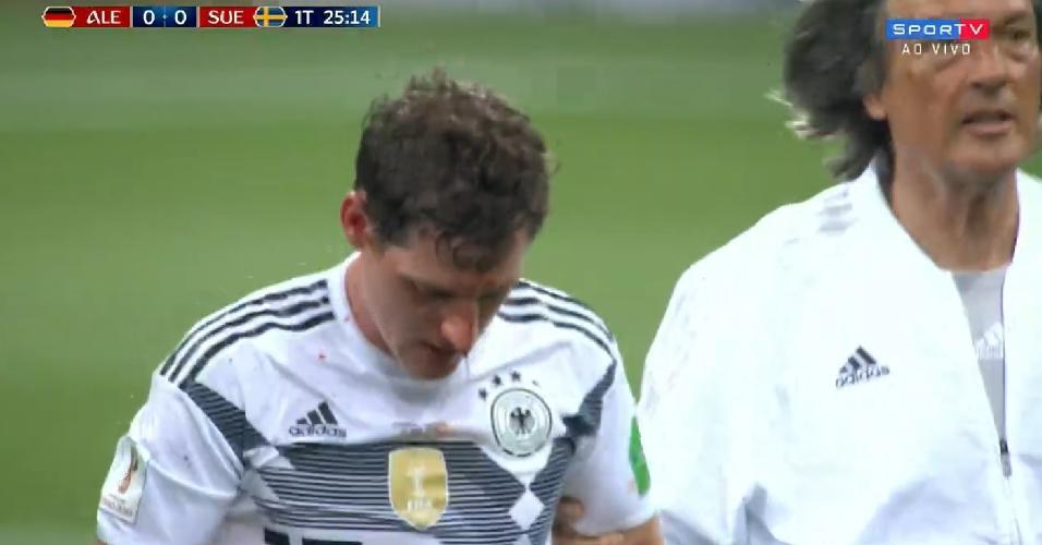 Sebastian Rudy, da Alemanha, sofre pancada no rosto e deixa gramado sangrando