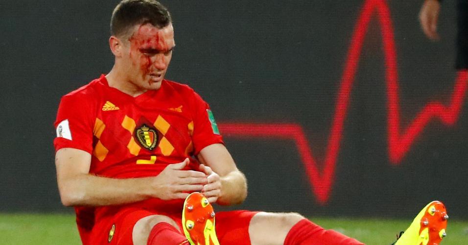 Thomas Vermaelen fica ensanguentado durante o jogo entre Inglaterra e Bélgica