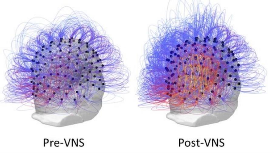 Um mês depois de receber um implante, paciente passou a responder a instruções simples. Na imagem é possível ver as respostas do cérebro antes (à esq.) e depois do tratamento (à dir.) - Corazzol et al
