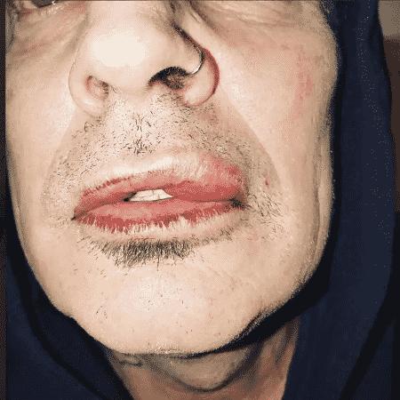 Tommy Lee mostra marcas da suposta agressão - Reprodução/Twitter