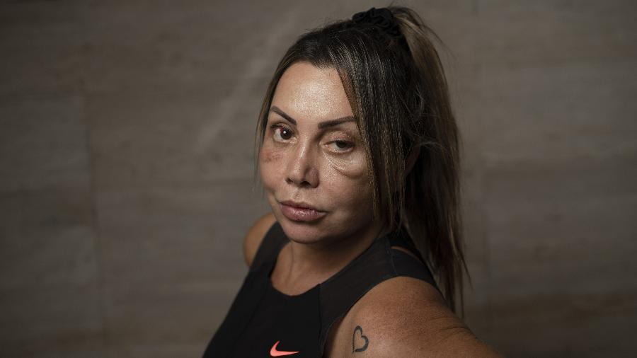 Elaine Caparroz foi agredida em seu apartamento no Rio de Janeiro - Ricardo Borges/UOL
