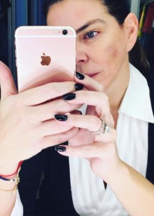 5.jul.2016 - Gisele Fraga mostra rosto machucado e denuncia agressão de ex-marido - Reprodução/Instagram/giselecfraga