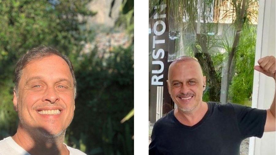 Guilherme Fontes mostra resultado do transplante capilar - Reprodução/Instagram