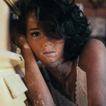Eliane Medeiros foi diagnosticada aos 5 anos - Reprodução/ Facebook