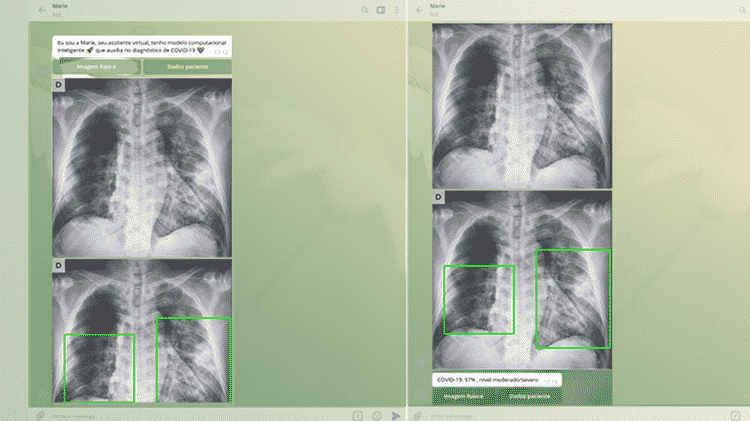 O aplicativo Marie apresenta uma assertividade de 93% a 98% no diagnóstico de pacientes com a covid-19 - Foto cedida pelos pesquisadores - Foto cedida pelos pesquisadores