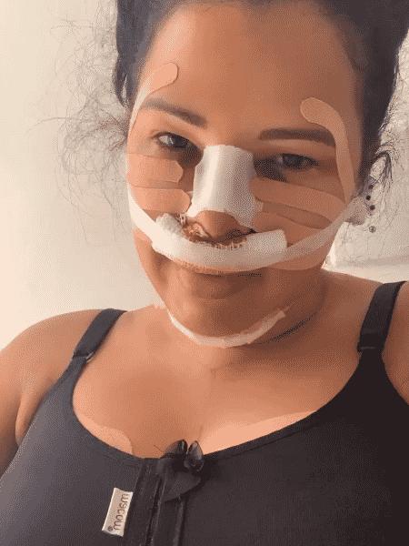 Ariadna Arantes grava vídeo após cirurgia - Reprodução/Instagram