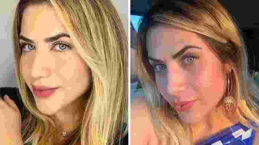 Antes e depois de procedimento no nariz de Jéssica Beatriz Costa - Reprodução/Instagram