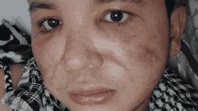 'Tive que buscar doações de todo o mundo para cobrir os custos dos meus tratamentos', conta Trujillo, quatro anos após os procedimentos que danificaram seu rosto - Jerson Trujillo - Jerson Trujillo