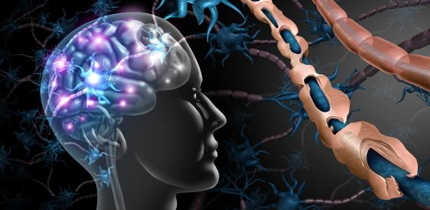 Esclerose múltipla: diagnóstico precoce e novos remédios ajudam a lidar – VivaBem