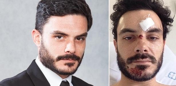 """O ator Kiko Pissolato, de """"Amor à Vida"""" (2013), está internado no hospital Santa Isabel - Montagem/UOL"""