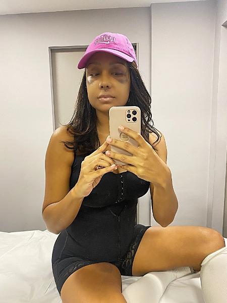 Drika Marinho faz cinco cirurgias ao mesmo tempo e conta experiência aos seguidores - Reprodução/Twitter