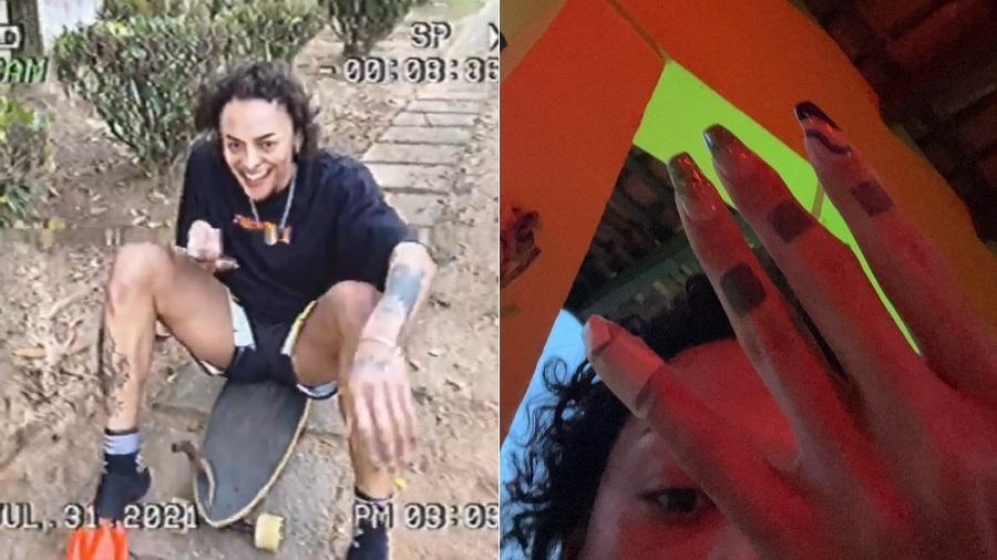 Pabllo Vittar aparece com dedo machucado após dia de skatista - Reprodução/Instagram