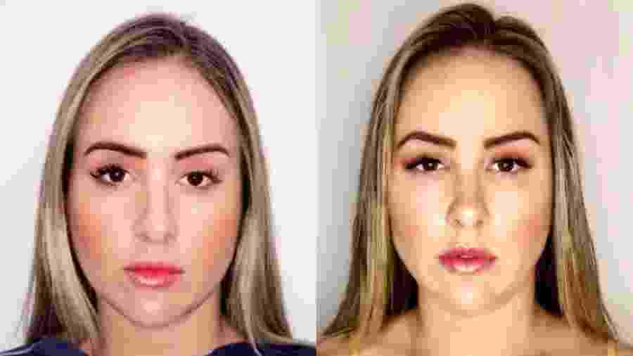 Patrícia Leitte, ex-BBB antes e depois da harmonização facial - Divulgação/Arquivo Pessoal