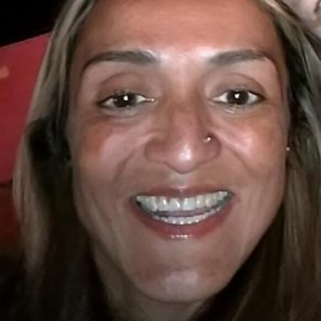 A australiana Griselle perdeu o dente da frente ao ser vítima de violência doméstica na adolescência - Reprodução/ABC