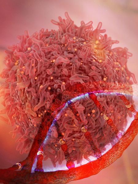 O câncer é provocado devido ao crescimento descontrolado de células - iStock