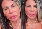 Gretchen mostra rosto uma semana após harmonização facial - Reprodução / Instagram
