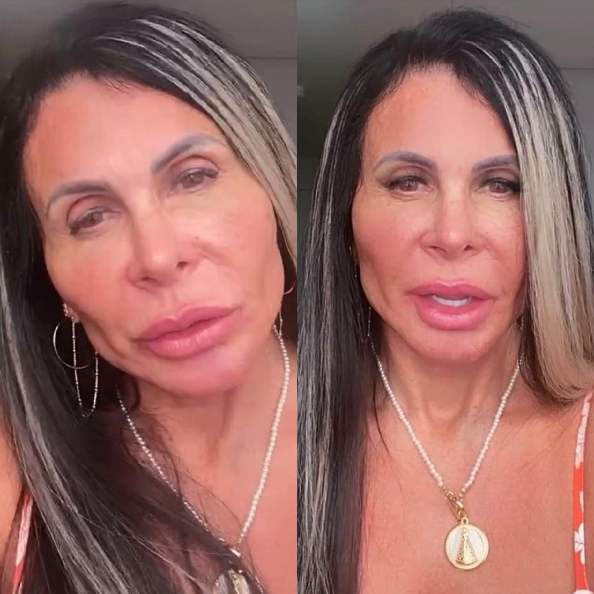Gretchen mostra rosto uma semana após harmonização facial