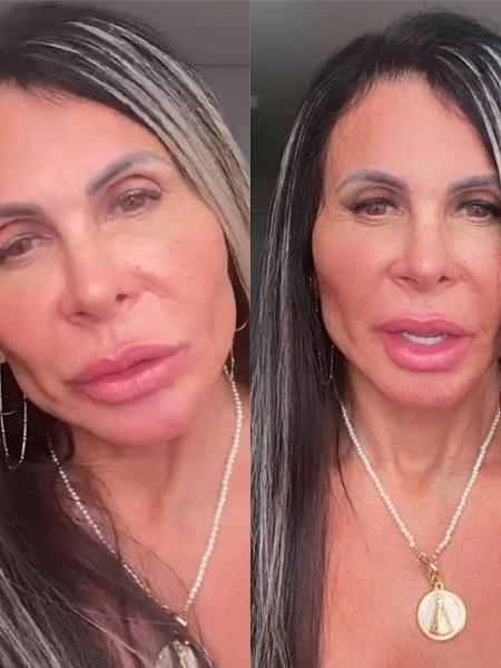 Gretchen faz nova harmonização facial - Reprodução / Instagram