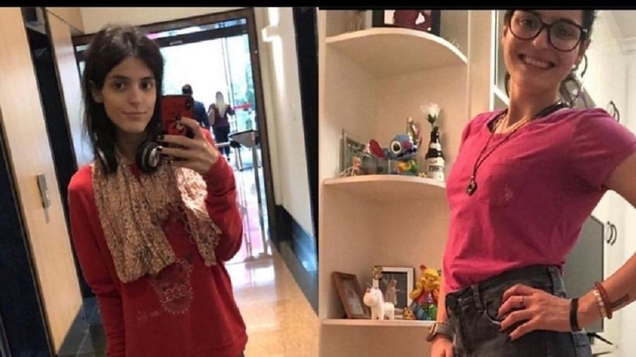 Martina Perucchi mostra antes e depois de tratamento - Arquivo pessoal