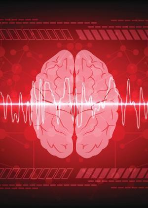 Pesquisadores criam software que ajuda a identificar AVC e demência