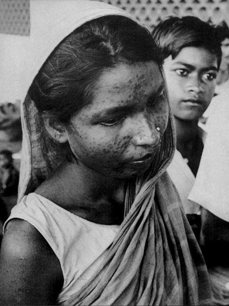 Cicatrizes marcavam o corpo de quem sobrevivia à doença, como a mulher acima - L. Dale?/?WORLD HEALTH, maio de 1980 - L. Dale?/?WORLD HEALTH, maio de 1980