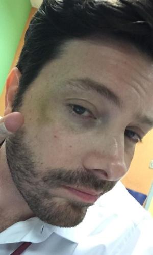 Danilo Gentili se machuca na filmagem de seu longa
