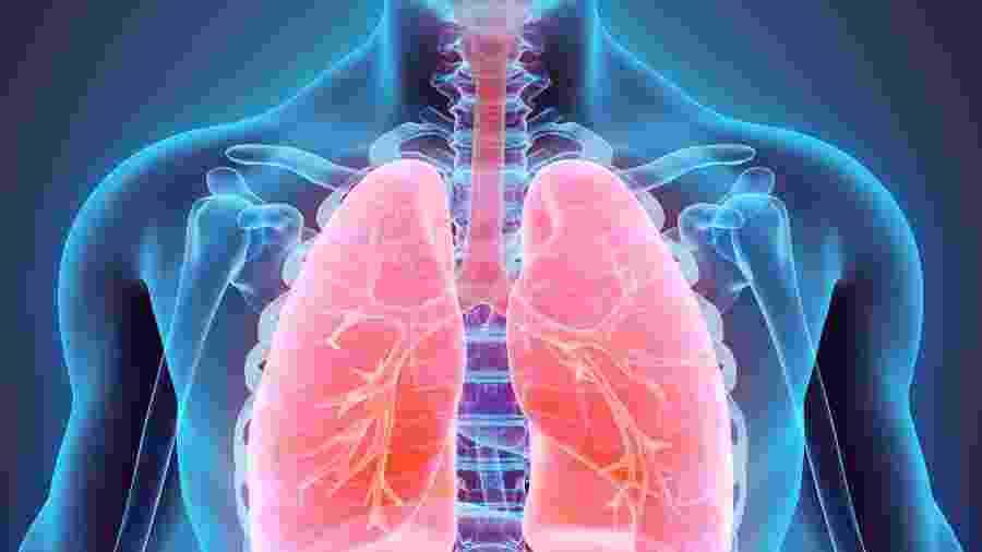 Microtrombos (pequenos coágulos) foram encontrados nos pulmões de pacientes que morreram após contrair o novo coronavírus - iStock