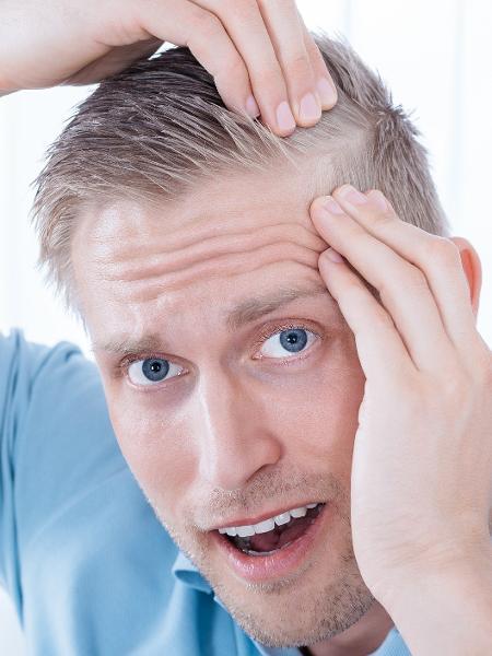 O tratamento promete fazer a diferença de verdade para pessoas que sofrem com a queda de cabelo - iStock