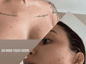 Bianca Andrade desabafa sobre pele na gravidez - Reprodução/Instagram - Reprodução/Instagram