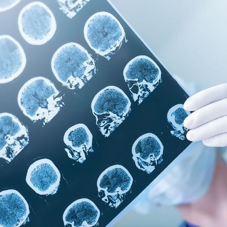 No Brasil, o número de pessoas com Alzheimer já atinge cerca de 1,2 milhão - Getty Images