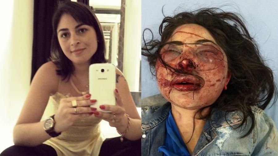 Jane Cherobin foi brutalmente agredida na madrugada de segunda-feira (4) - Arquivo Pessoa/Divulgação Salvador Cherobin