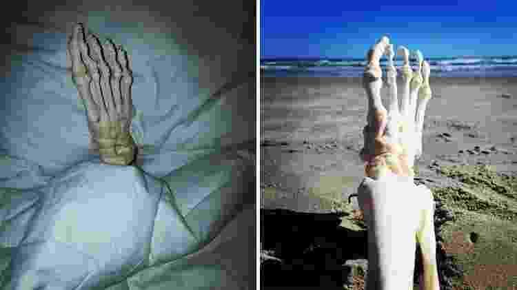 Jovem decidiu levar amputação com leveza - Reprodução/Instagram/onefootwander - Reprodução/Instagram/onefootwander