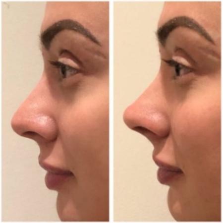 Juju Salimeni mostra antes e depois da rinomodelação - Reprodução/Instagram/jujusalimeni