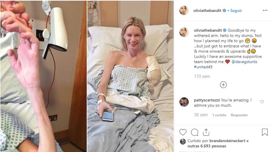 Dublê Olivia Jackson teve o braço amputado após acidente durante gravação de Resident Evil 6: O Capítulo Final - Reprodução/Instagram