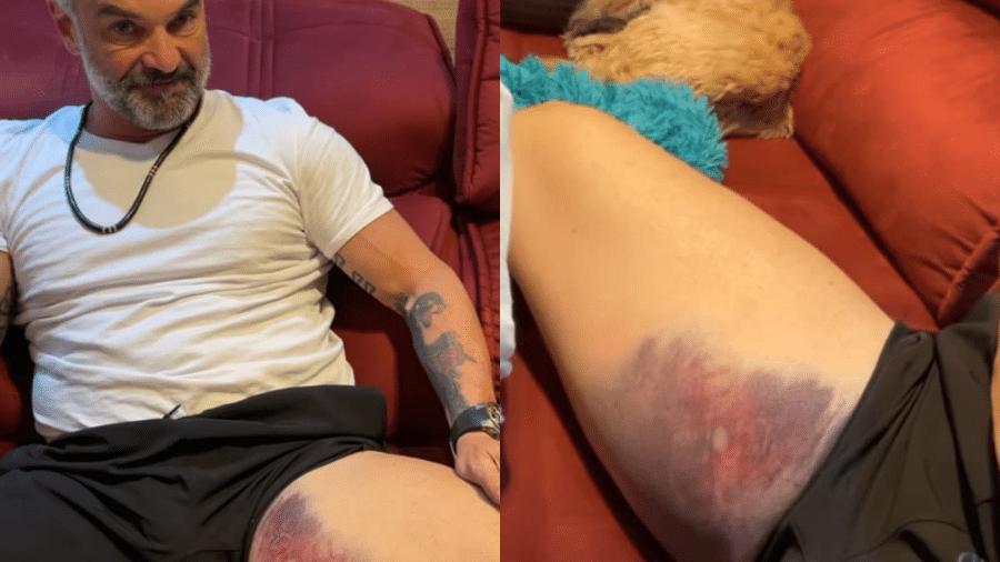 Mateus Carrieri sofreu lesão e mostrou edema na coxa - Reprodução/Instagram