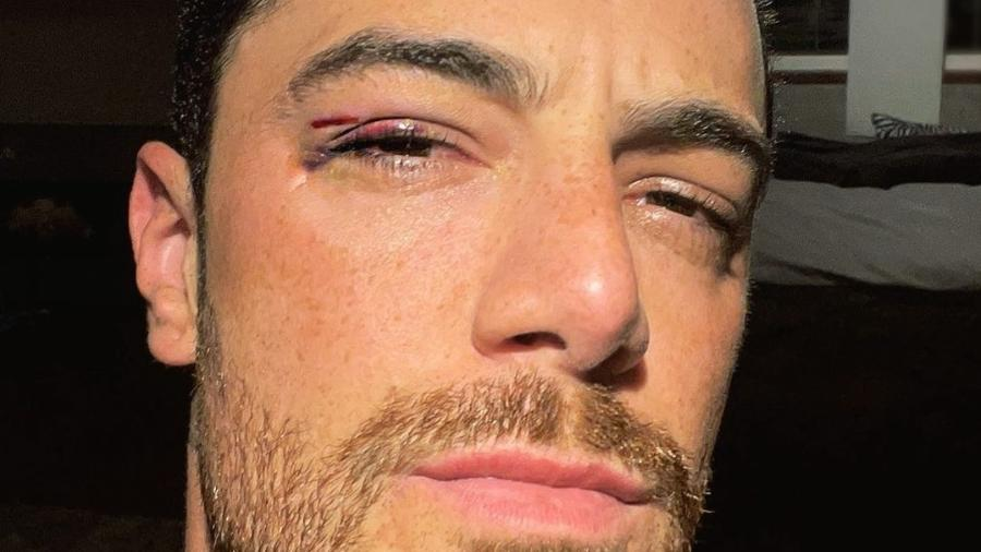 Felipe Titto ficou com hematoma após bater o rosto na janela do carro - Reprodução/Instagram