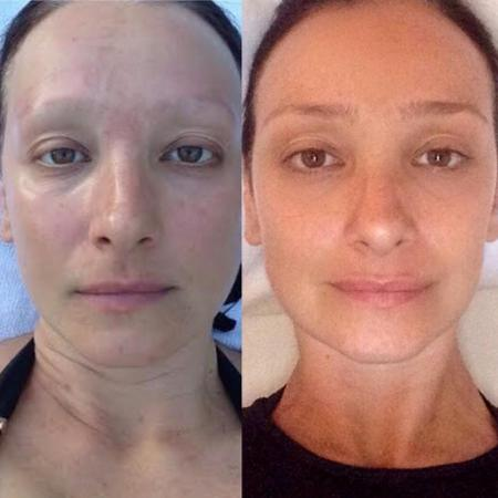 Sabrina Parlatore mostra mudanças no corpo um ano após fim de quimioterapia - Reprodução/Instagram/sabrinaparlaoficial