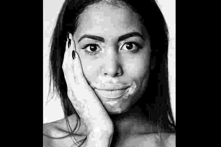 Modelos com vitiligo - Divulgação/Julia Kaczorowska