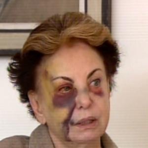 """Beatriz Segall mostra hematomas no rosto em entrevista ao """"Hoje em Dia"""". A atriz bateu o rosto ao tropeçar no buraco de uma calçada no Rio de Janeiro"""
