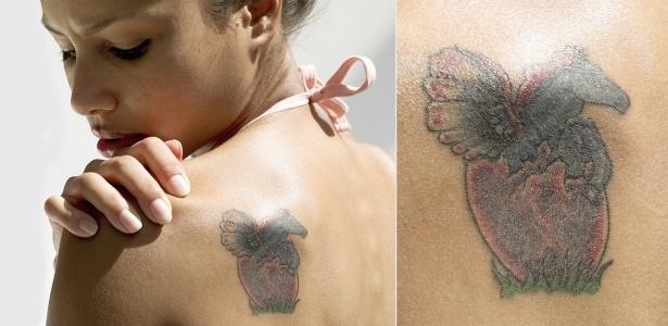Tatuagens podem gerar arrependimento e a remoção nem sempre dá resultados 100% satisfatórios - Montagem UOL/Thinkstock
