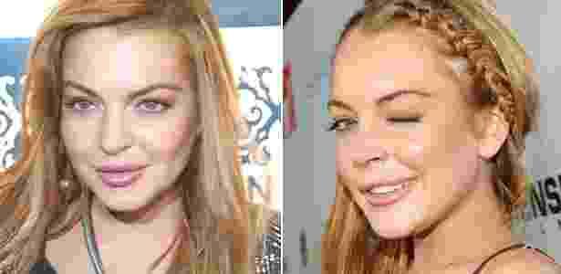 Adepta do preenchimento labial, Lindsay Lohan é frequentemente vista com os lábios disformes e pouco proporcionais às suas feições - AgNews e Getty Images