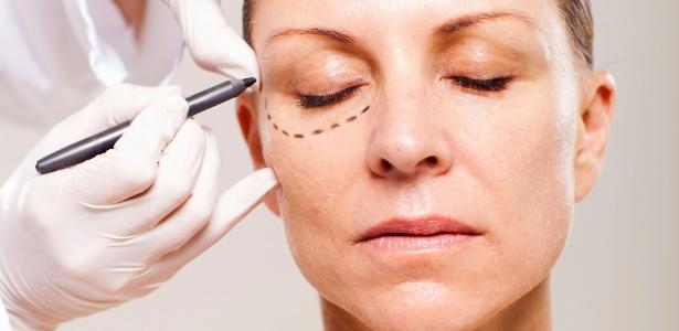A blefaroplastia, cirurgia plástica para correção de pálpebras caídas e bolsas, é uma das mais buscadas pelas brasileiras - Thinkstock