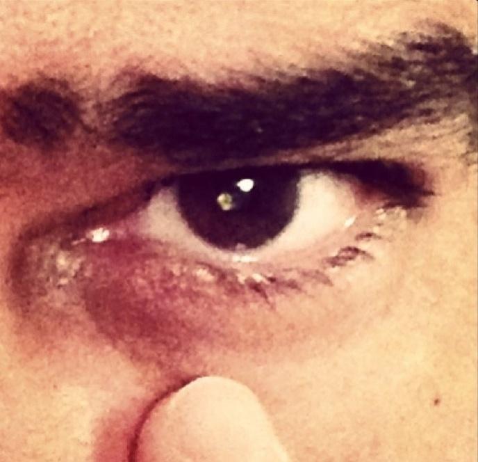 """""""Tá vendo esse olho aqui? Acabou de ser operado. Só posso voltar pro trabalho na quarta que vem"""", contou ele, na ocasião para os internautas"""