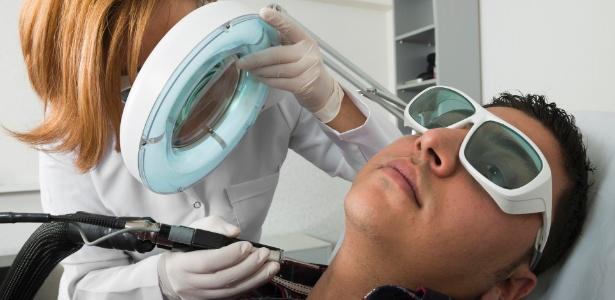 A remoção de pelos com técnica de laser definitiva é indicada para áreas onde os pelos encravam com frequência, como na parte de baixo da barba - Thinkstock